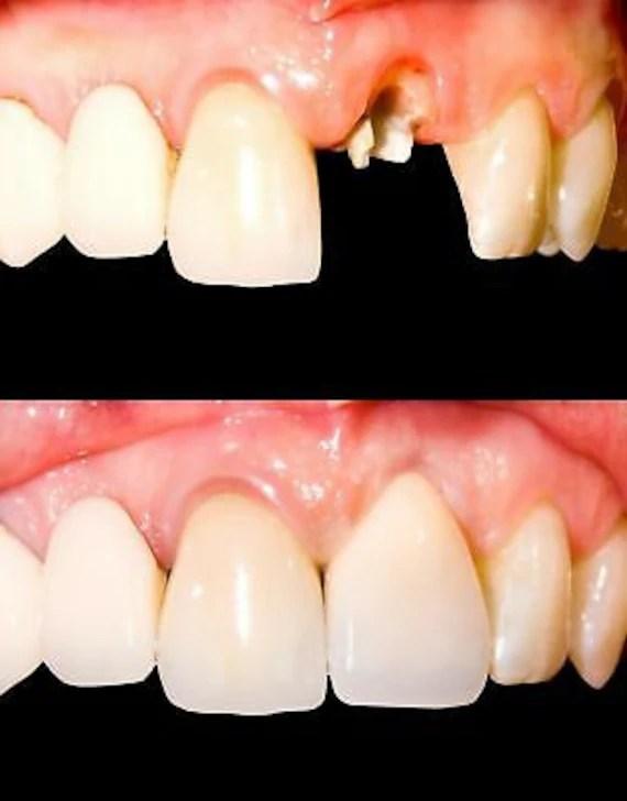 Imako Teeth : imako, teeth, Temporary, Tooth, Dental, Repair, Replace, Missing