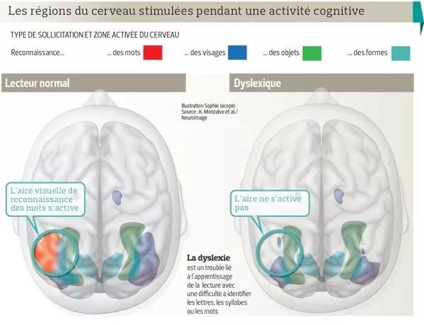 Les régions du cerveau stimulées pendant une activité cognitive