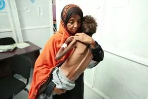 Une femme porte son enfant qui souffre de malnutrition, le 13 juin 2017 à l'hôpital d'Hodeidah sur le bord de la mer rouge.