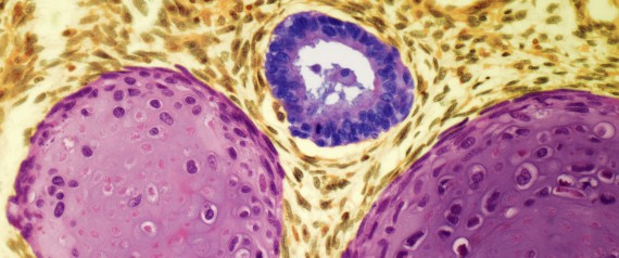 testicular cancer sun