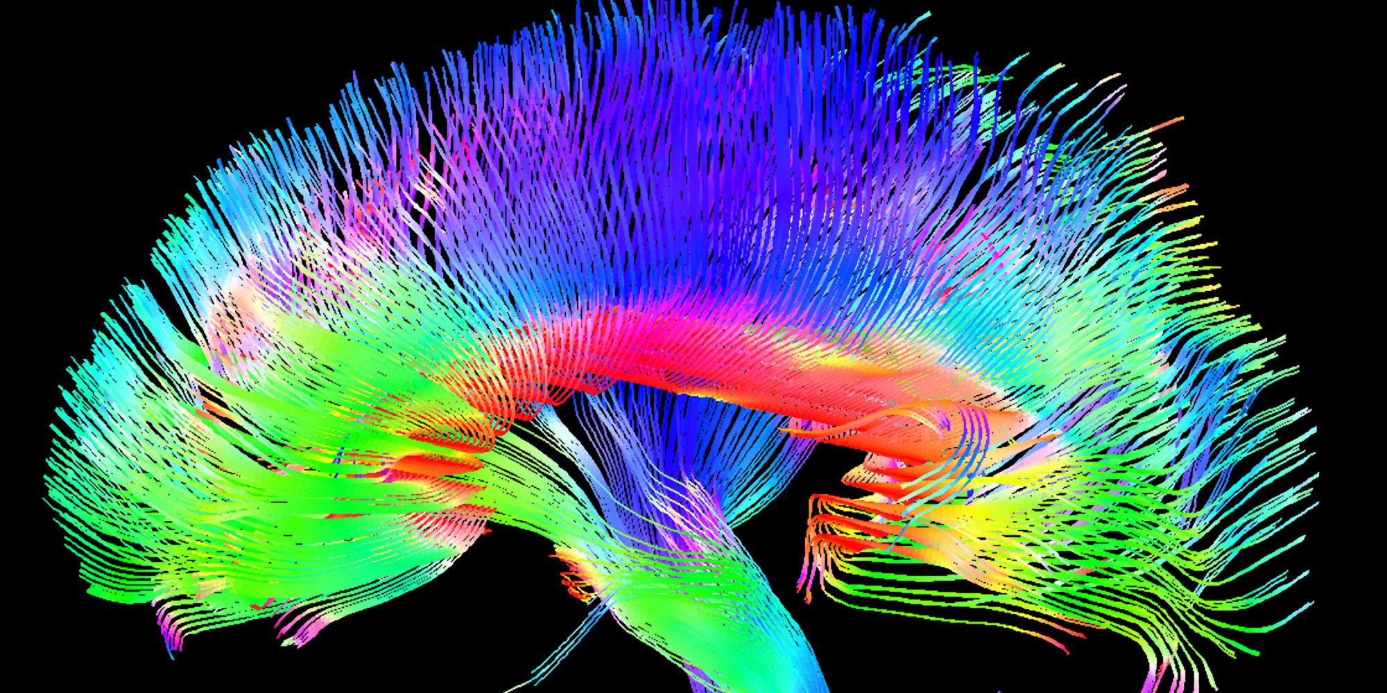 Brain Processes Music Much Like Spoken Language New Study Shows