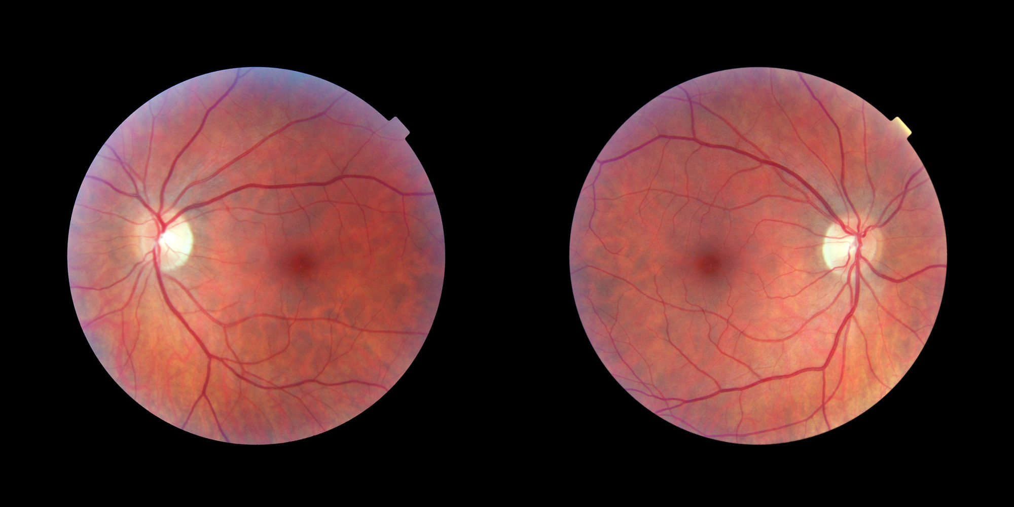 The Human Eye Is Wired Backwards And These Scientists