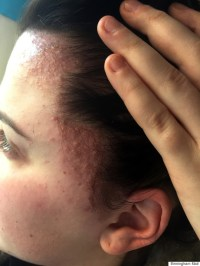 Sisters Left With Swollen, Scab-Covered Heads After ...