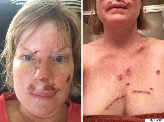 Les moyens au blanchiment de la peau