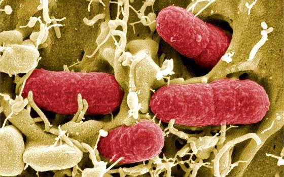 Enterohemoragické bacteria Escherichia coli (EHEC)
