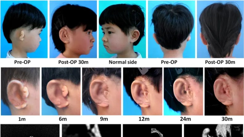 Image result for 5 Children Have New Ears Grown From Their Own Cells in a World First