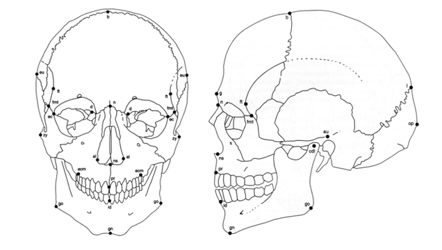 Ancestry, Race, and Forensic Anthropology