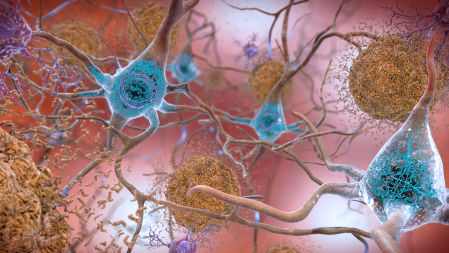 df0eca74bc69f5307582550951a92377 Scientists Find Unusual Form of Iron and Copper in Brains of Alzheimer's Patients   Gizmodo