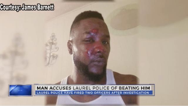 Illustration for article titled 2 Mississippi Police Officers Fired After Brutally Beating, Kicking Black Man