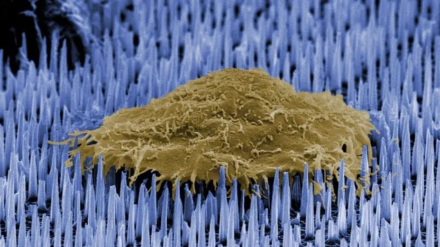Tiny 'Nanoneedles' Could Help Your Damaged Organs Repair Themselves