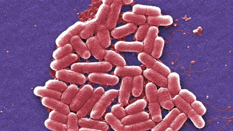 Illustration for article titled Very Fun Study Finds 1 in 3 Overseas Travelers Will Pick Up Drug-Resistant Bacteria
