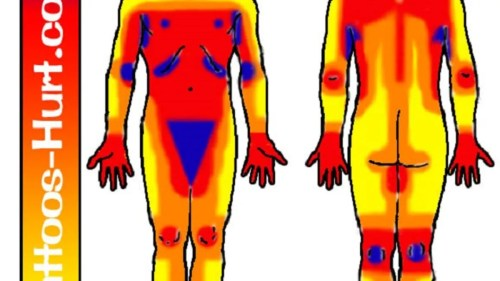 small resolution of body diagram pain scale