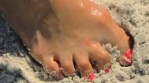 Hookworms On Florida Beaches