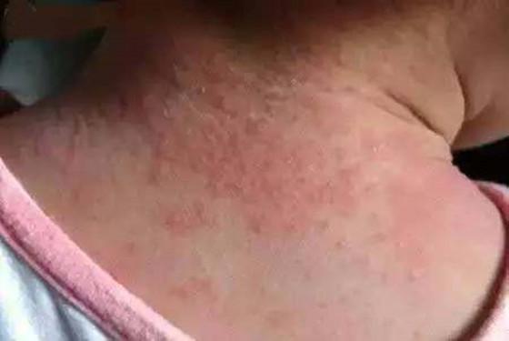 不要再誤解啦!濕疹和熱疹的區別 幾張圖片讓你一目了然 - 媽媽育兒網