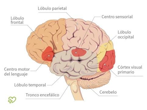 El SN, el cerebro y los accidentes cerebrovasculares