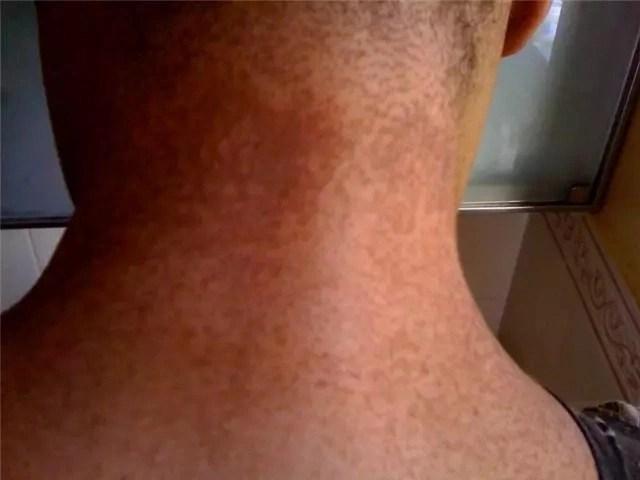 Remueve de esas molestas manchas negras en el cuello, dentro de los muslos y en axilas en 15 minutos