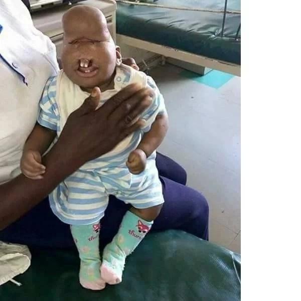 Child born with facial deformity abandoned in a Kisumu hospital (photos)