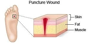 Puncture Wound: First Aid & Home Remedies