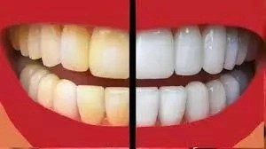 How To Whiten Your Teeth Using Home Made Materials Infoguide Nigeria
