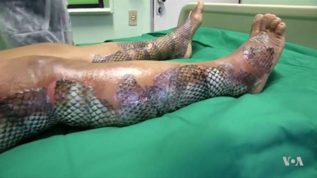 Guna kulit ikan