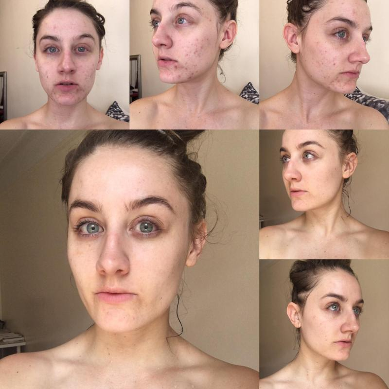 Baby Oil To Remove Makeup Reddit | Makeupview co