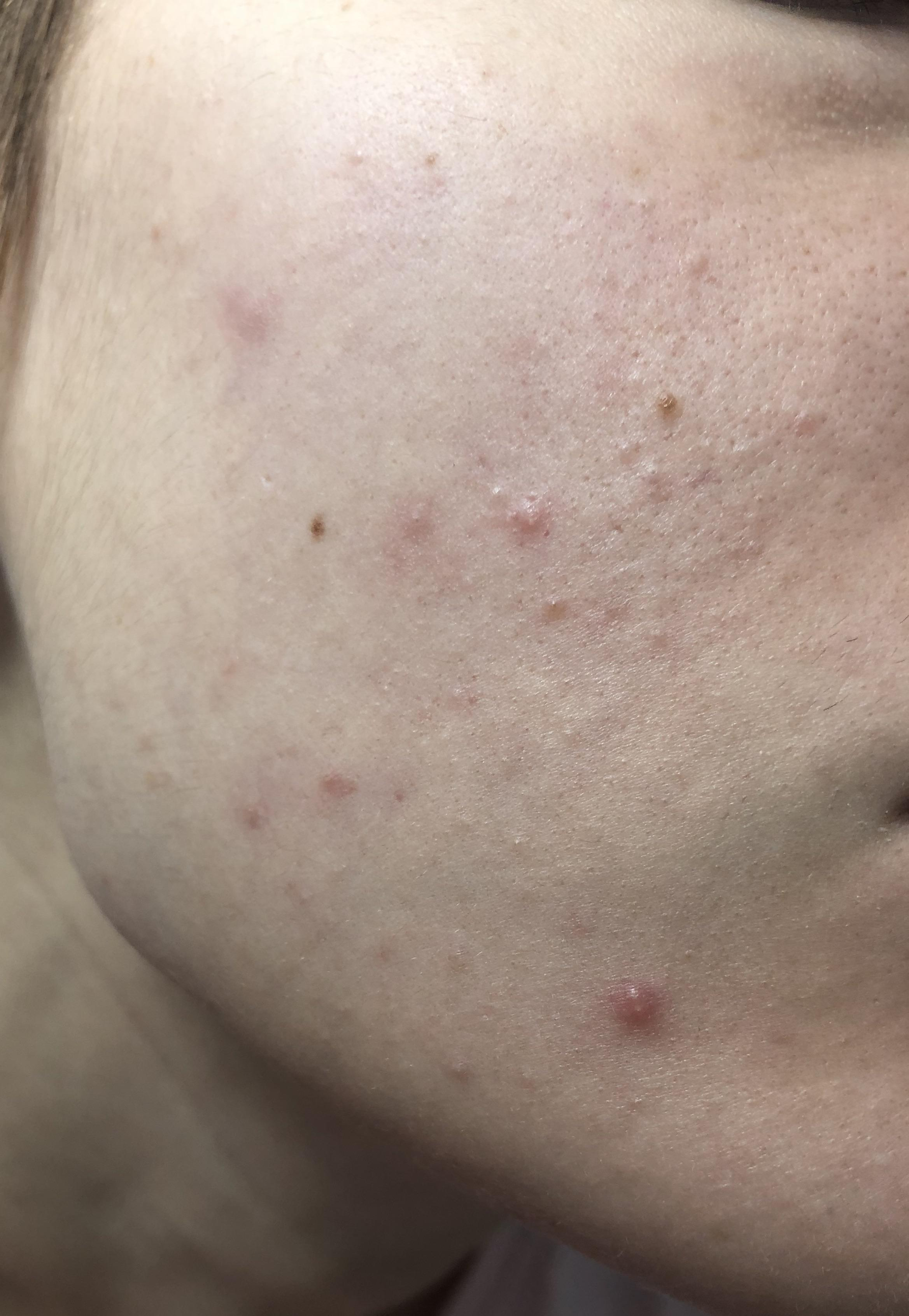 [Skin concerns] I always get this closed comedones on my ...