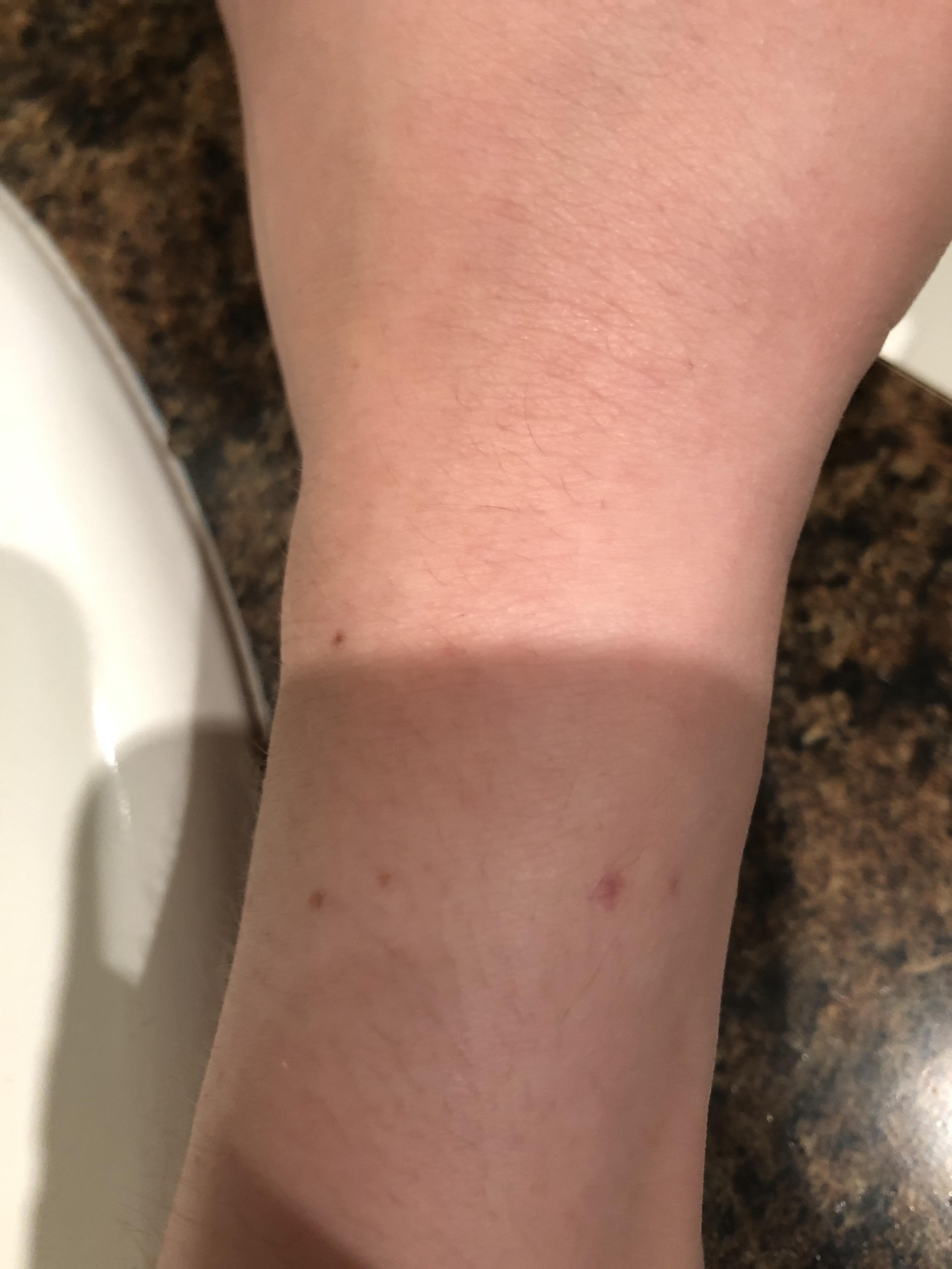 The marks from my watch are almost identical to the two ...