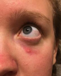 Spider Bite Lump Under Skin - Year of Clean Water