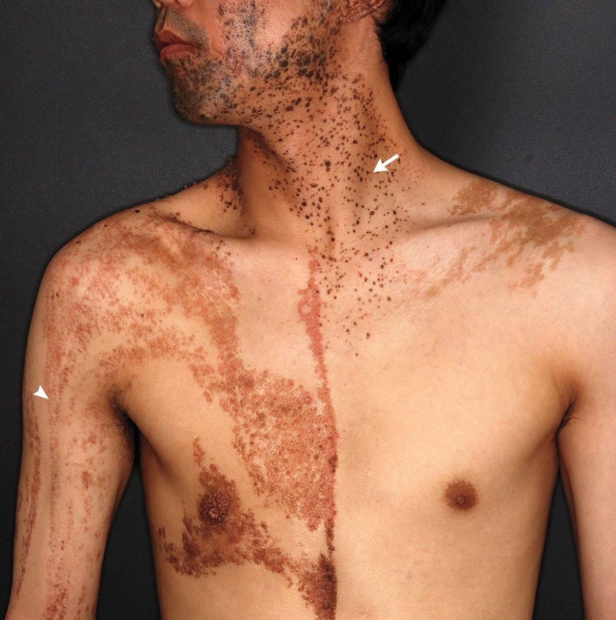 A 37 Year Old Man Came To The Dermatology Clinic With