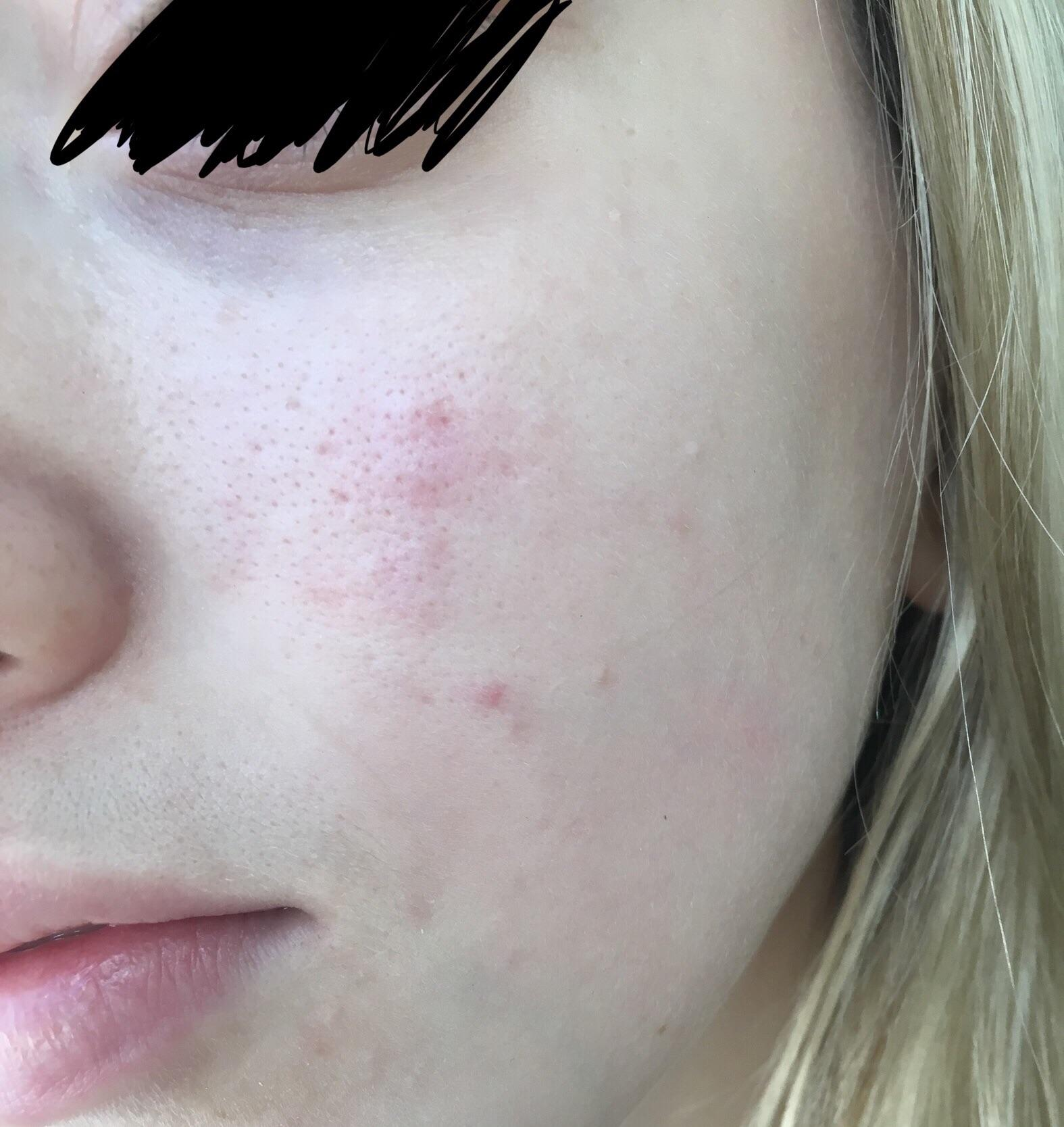 [Routine Help] Large pores clogged pores redness and ...