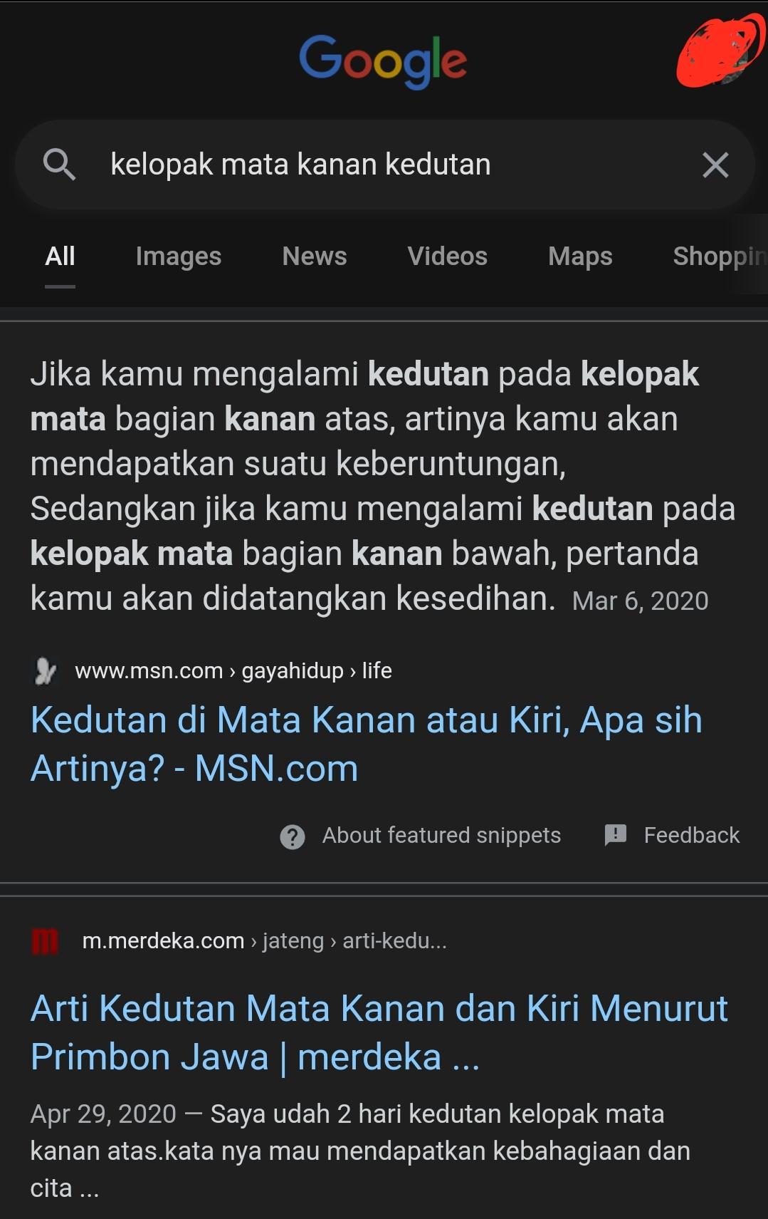 Arti Kedutan Kelopak Mata Kiri Bawah : kedutan, kelopak, bawah, Ingin, Kenapa, Kedutan,, Malah, Berujung, Indonesia