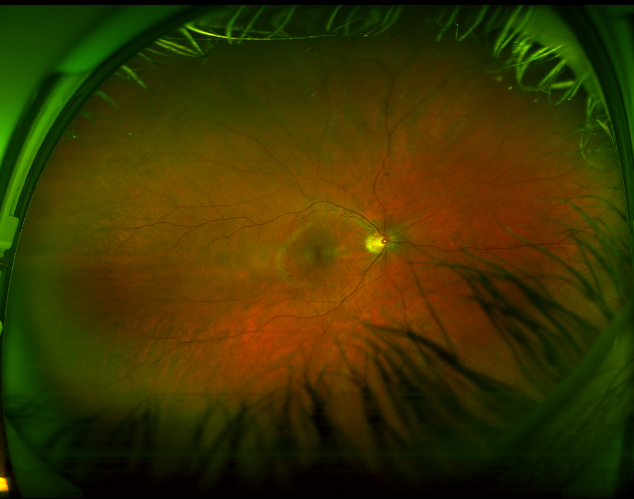 A Picture Of The Inside Of My Eye Pics