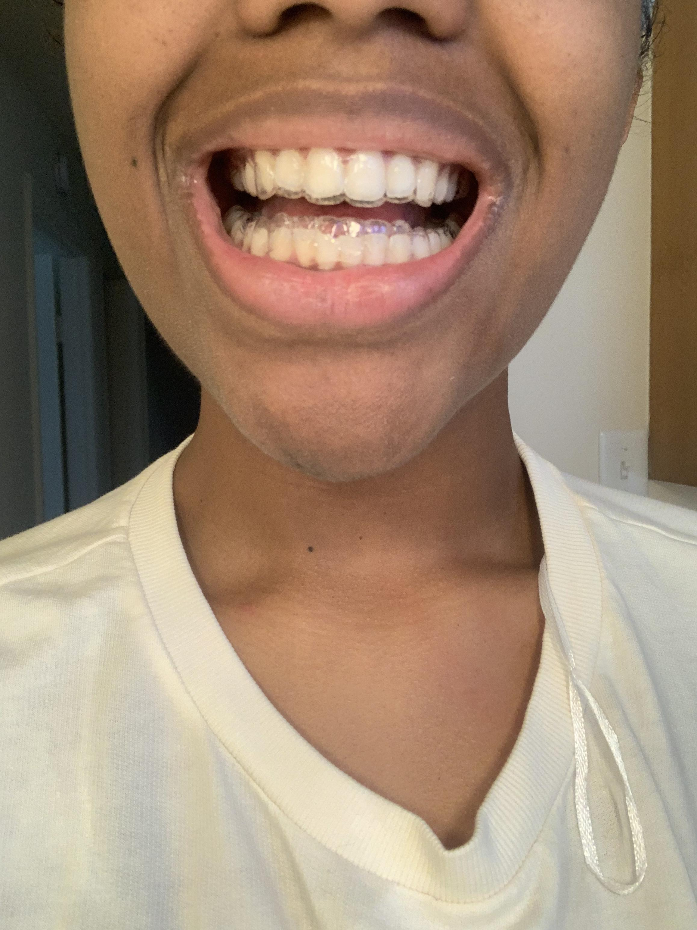 How Should Aligners Fit : should, aligners, First, Aligners, Don't, Help!, Smiledirectclub