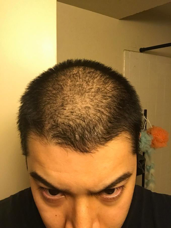 should i shave it? : bald