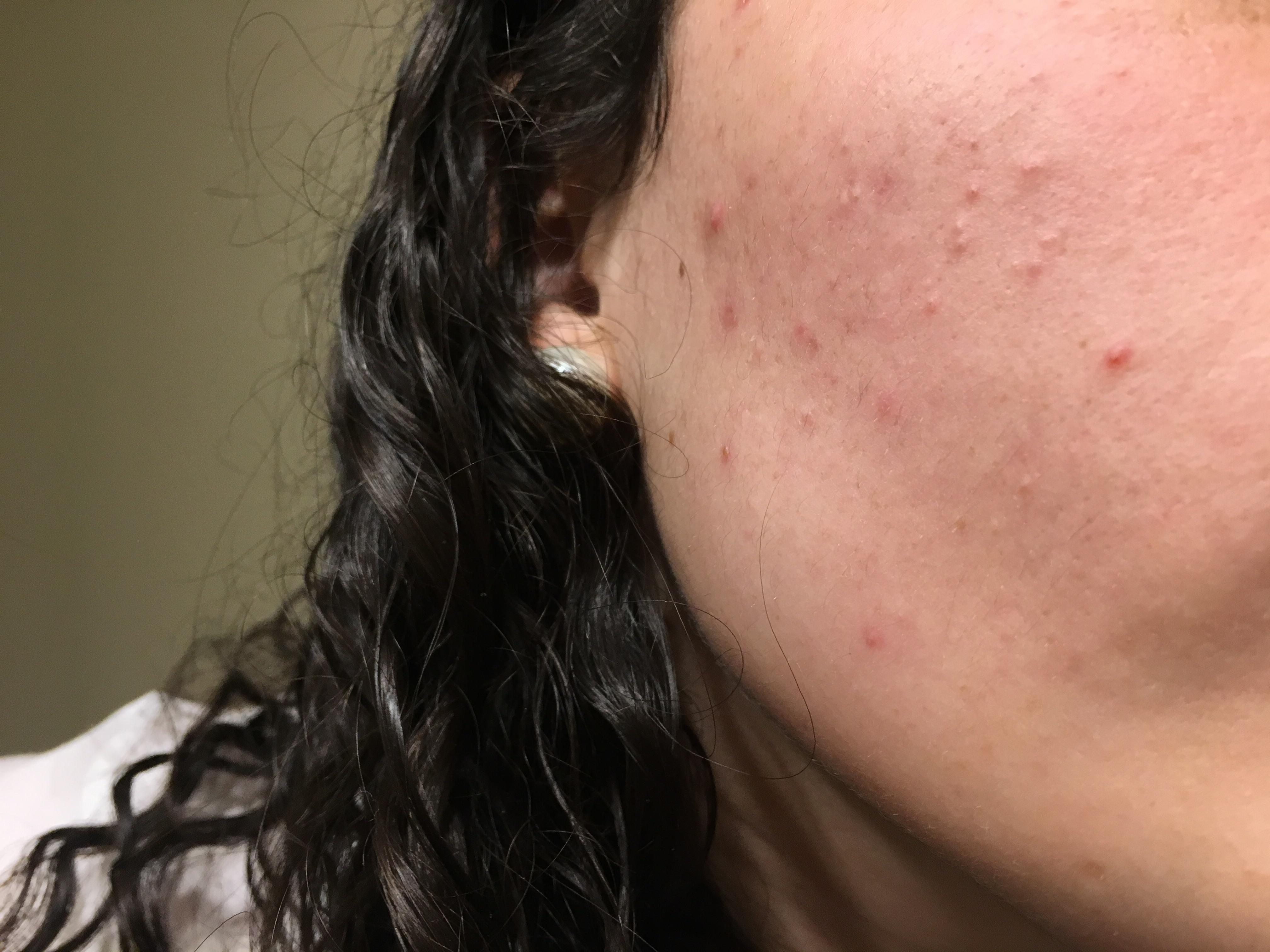 [Skin Concerns] Closed comedones on cheeks does anyone ...