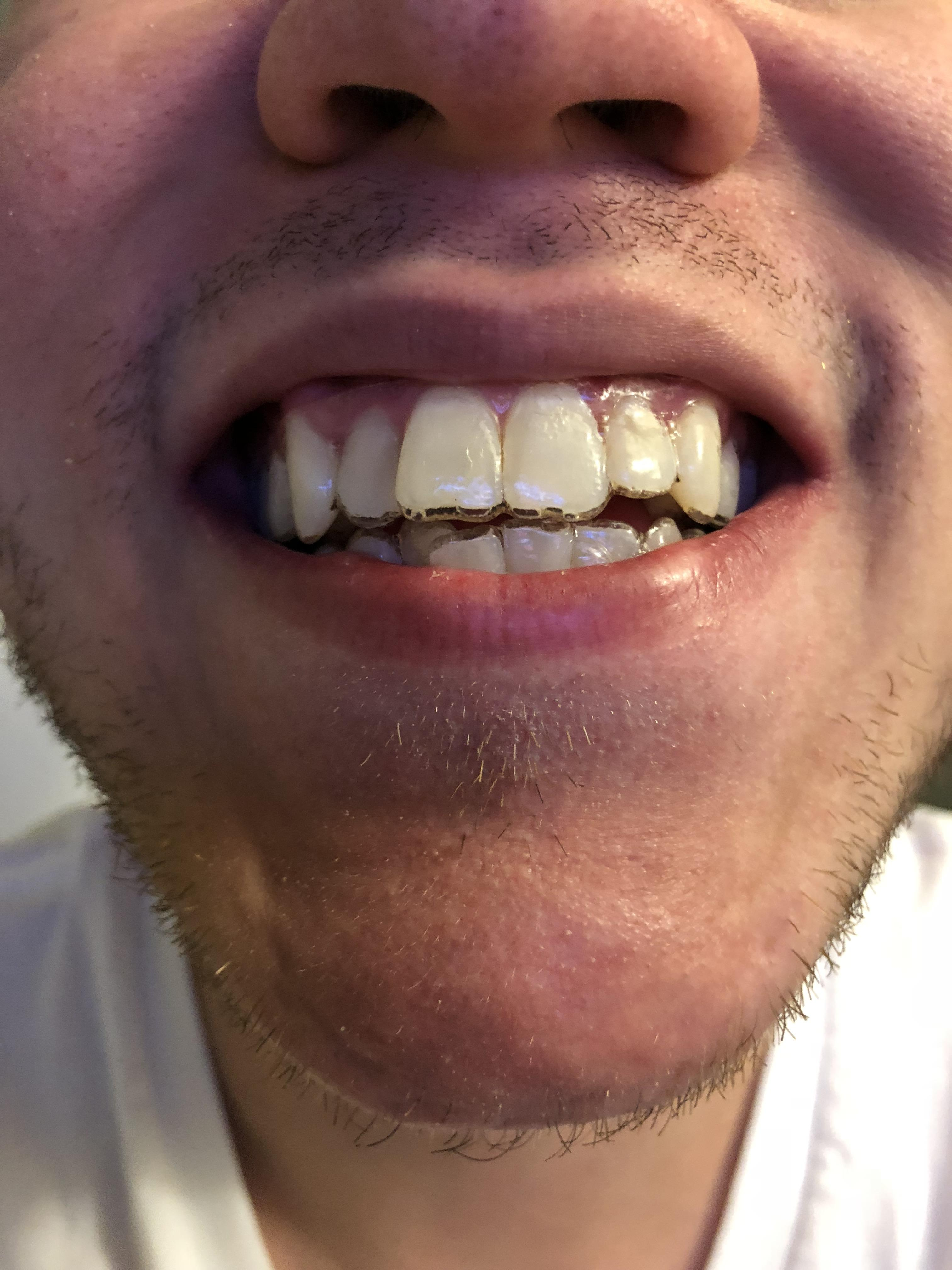 How Should Aligners Fit : should, aligners, Don't, First, Saliva, Aligners?, Smiledirectclub