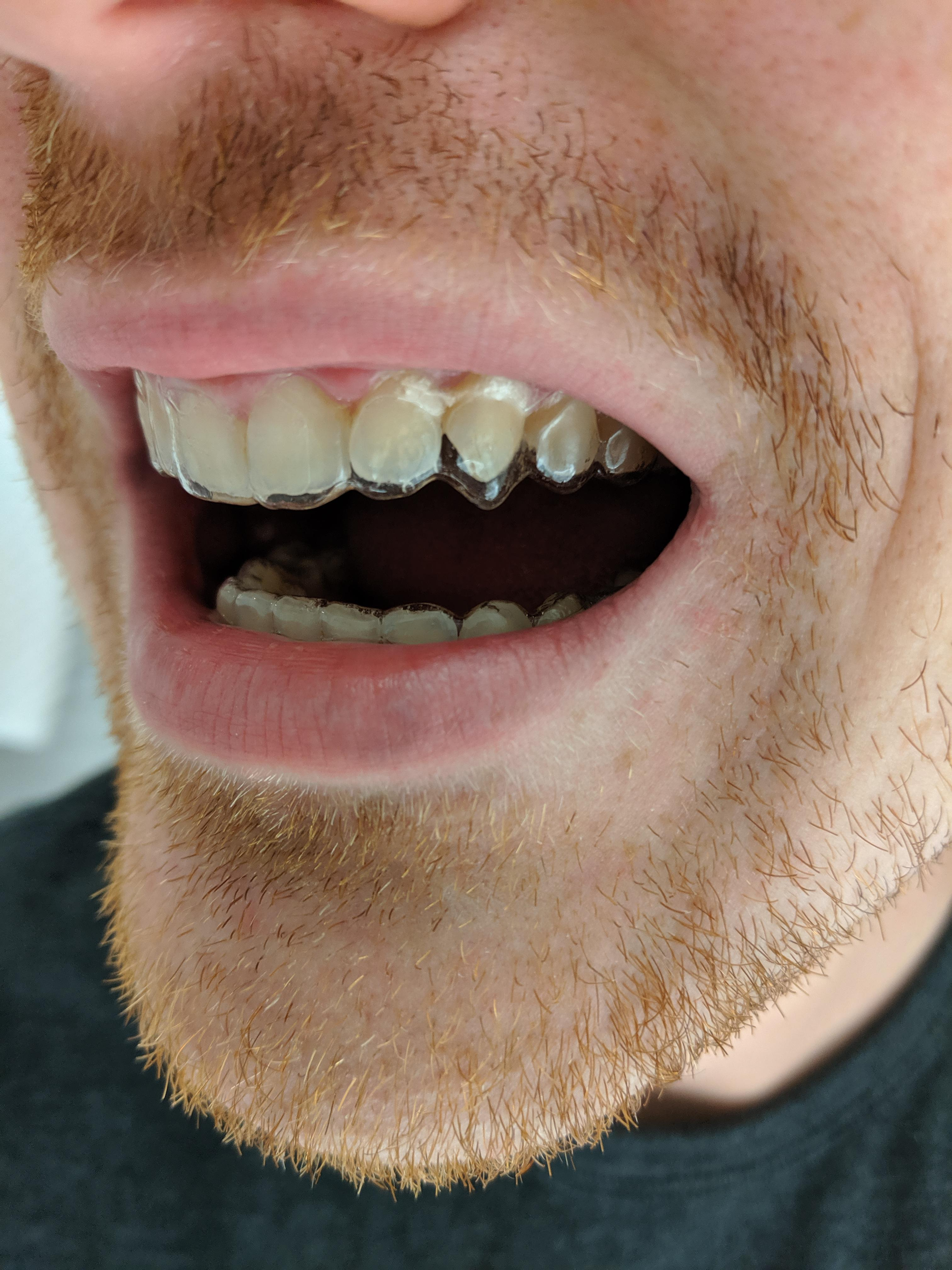 How Should Aligners Fit : should, aligners, Growing, Increasingly, Concerned, Aligners, Incorrectly, Sized, Moving, Tooth, Wrong, Notice, Aligner, Everywhere, Except, Which, Being