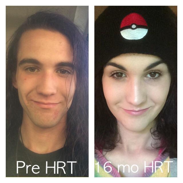 25 mtf 16 months