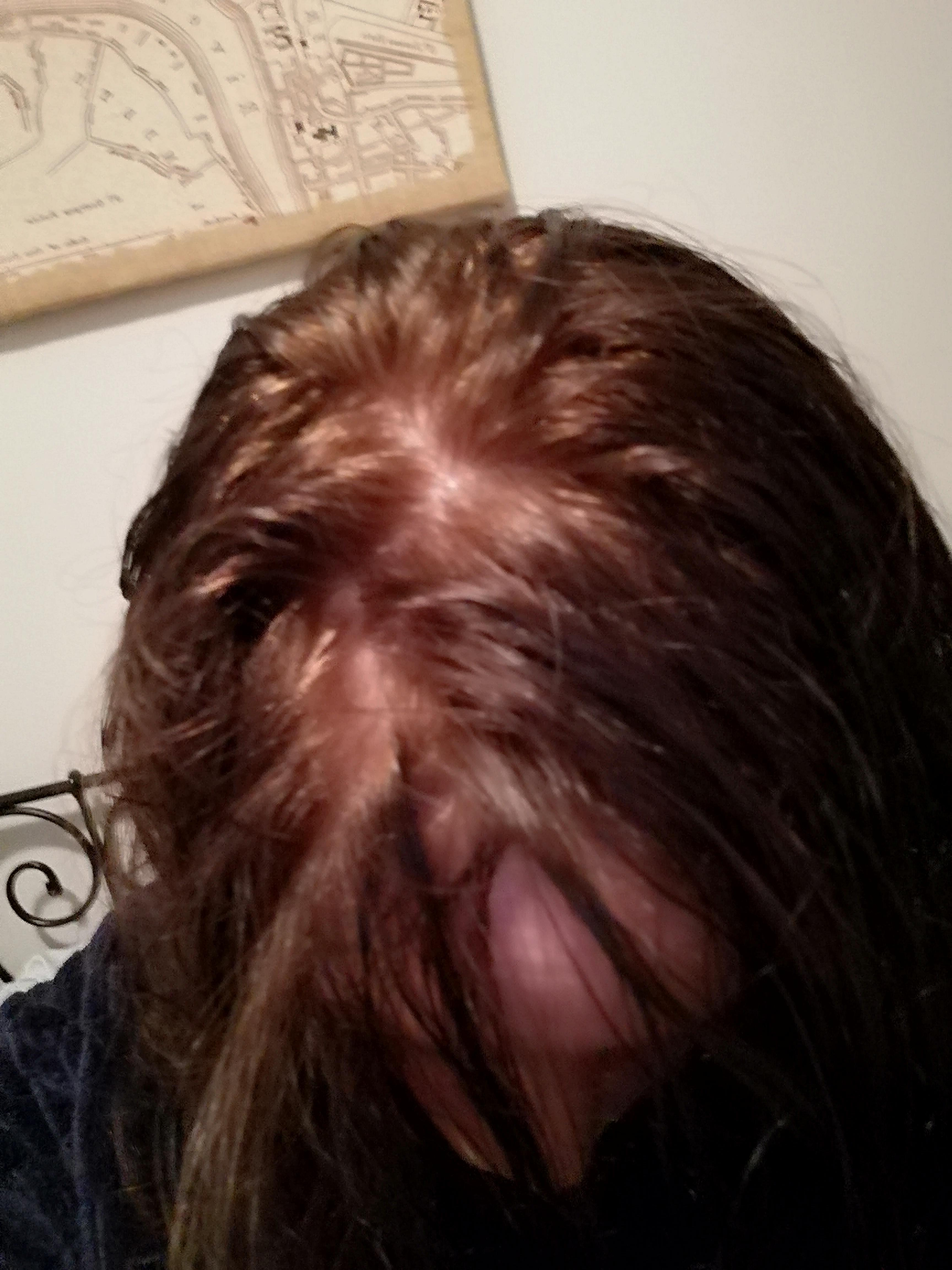 Does Anyone Know What Is Happening Here I Dyed My Hair Recently