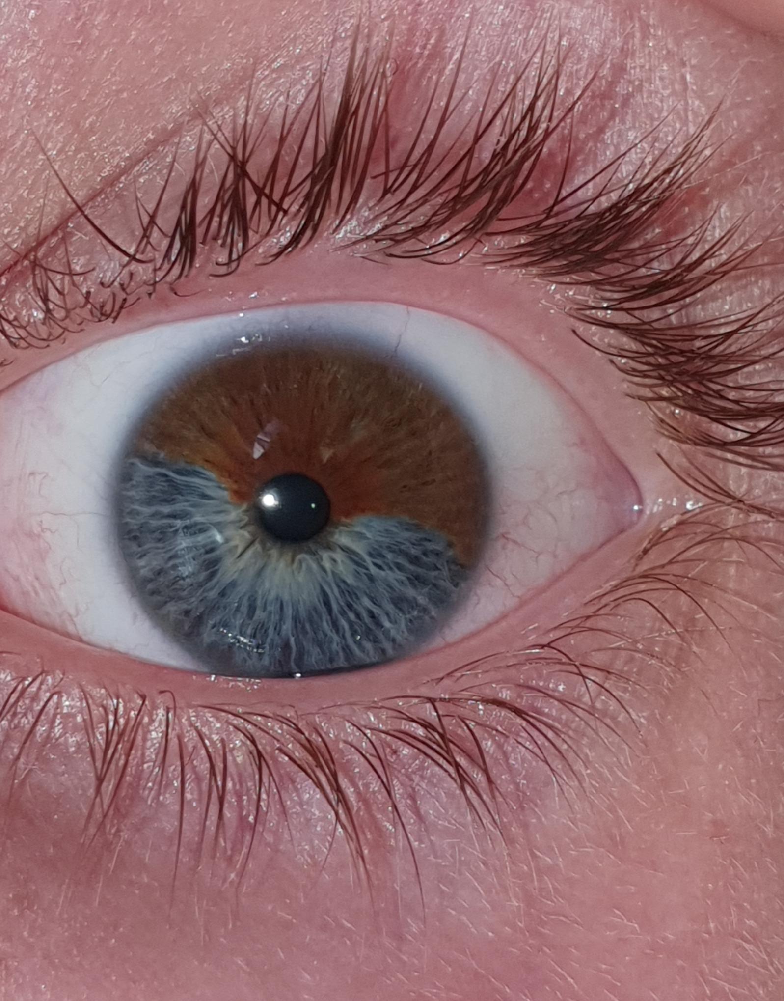 My Eye Has 2 Different Colors Mildlyinteresting