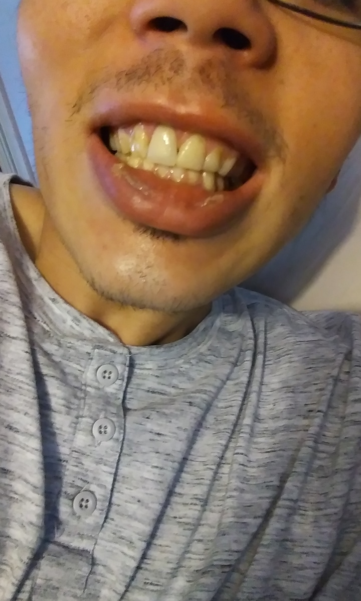 Why Do My Teeth Hurt When I Wear My Retainer : teeth, retainer, Would, Braces, Again?, Retainer, Years, Looking?, Please, Honest