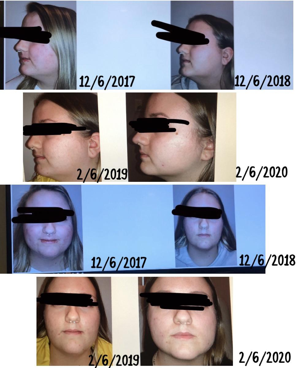 """Face Weight Loss Before And After : weight, before, after, F/20/5'6"""", [220lbs, 190lbs, 30lbs], Comparisons, Weight, Getting, Under, Control, Never, Thought"""