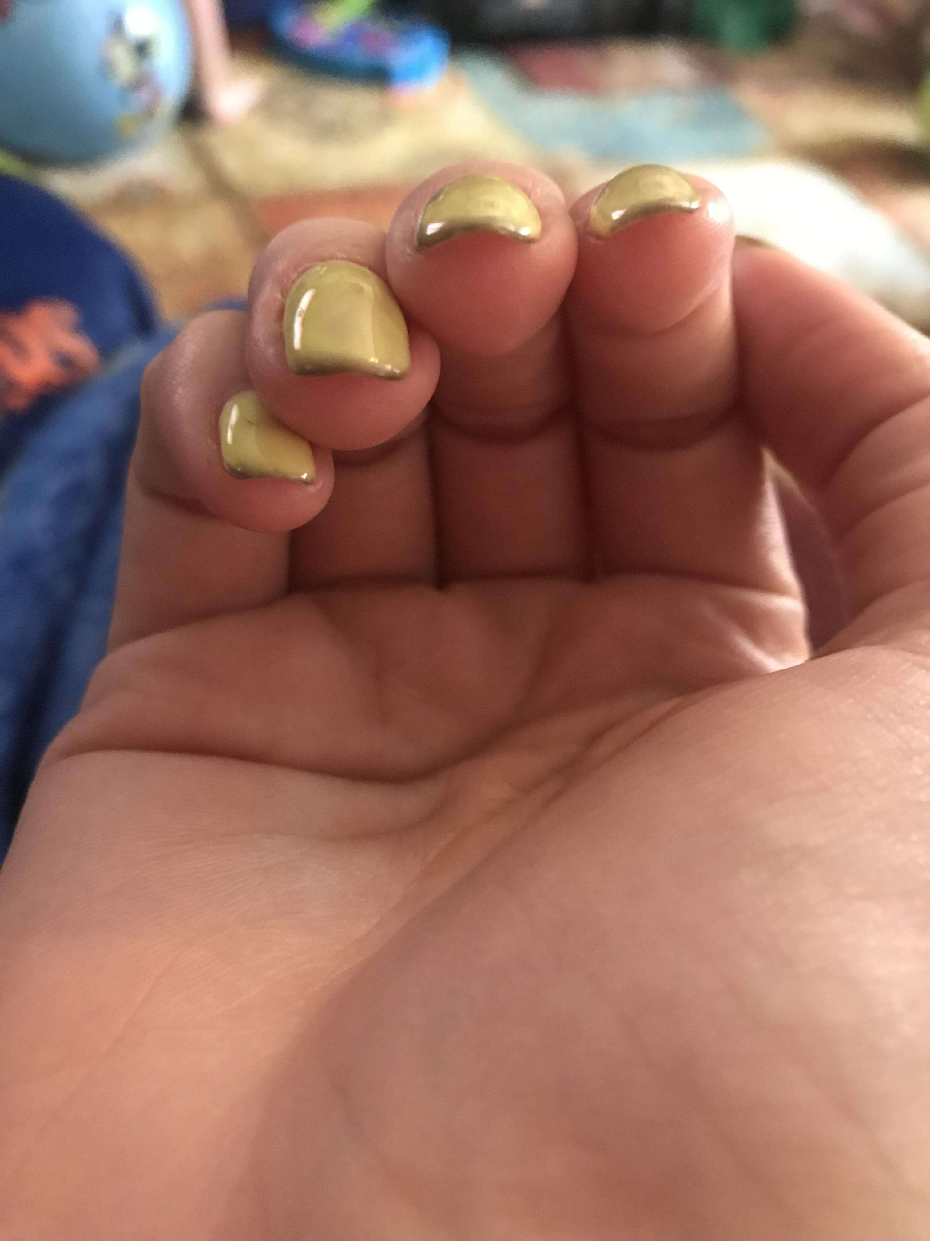 How To Clean Stained Gel Nails : clean, stained, nails, Nails, Turning, Black?, RedditLaqueristas
