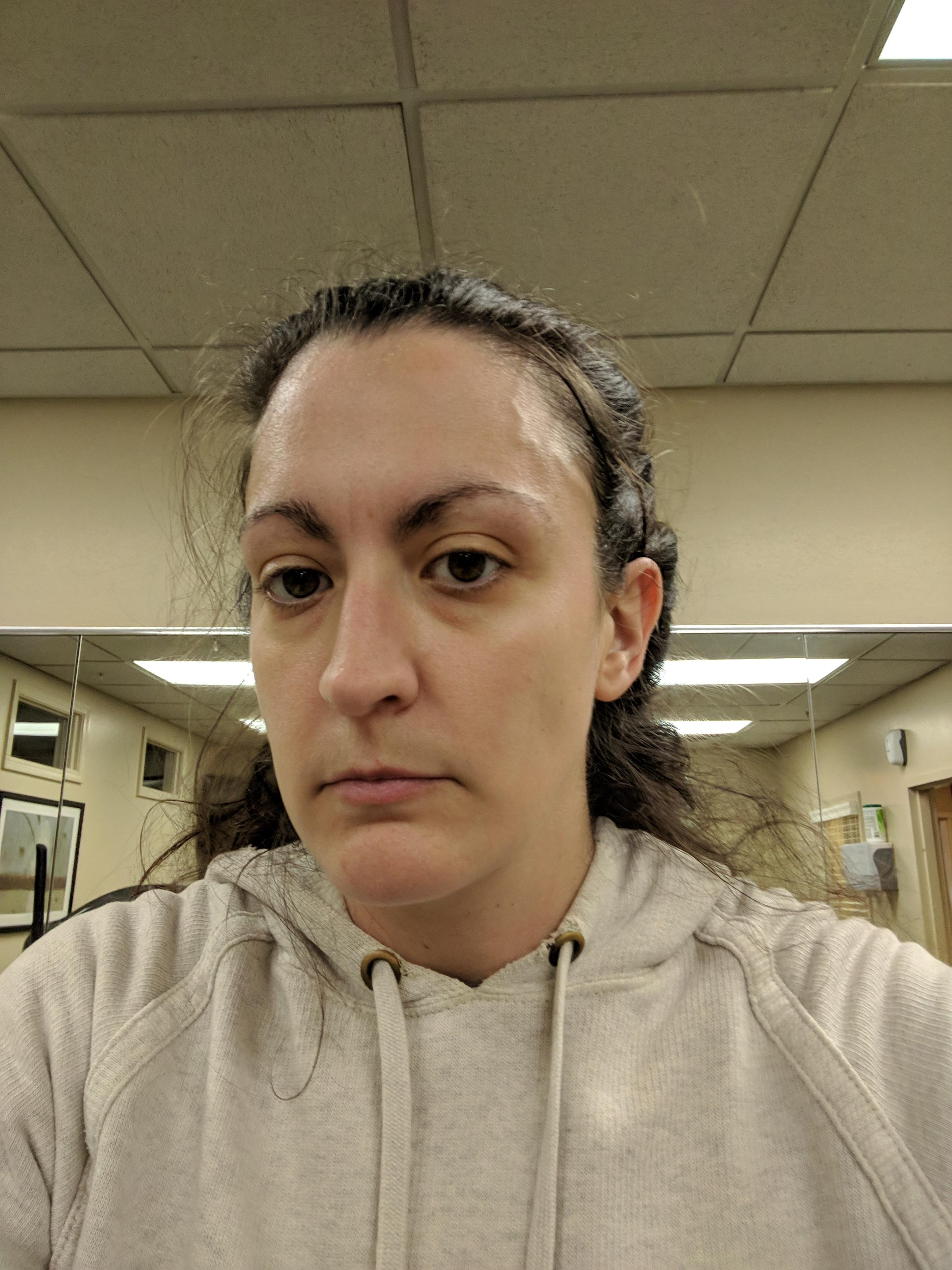 w1d2 my forehead vein