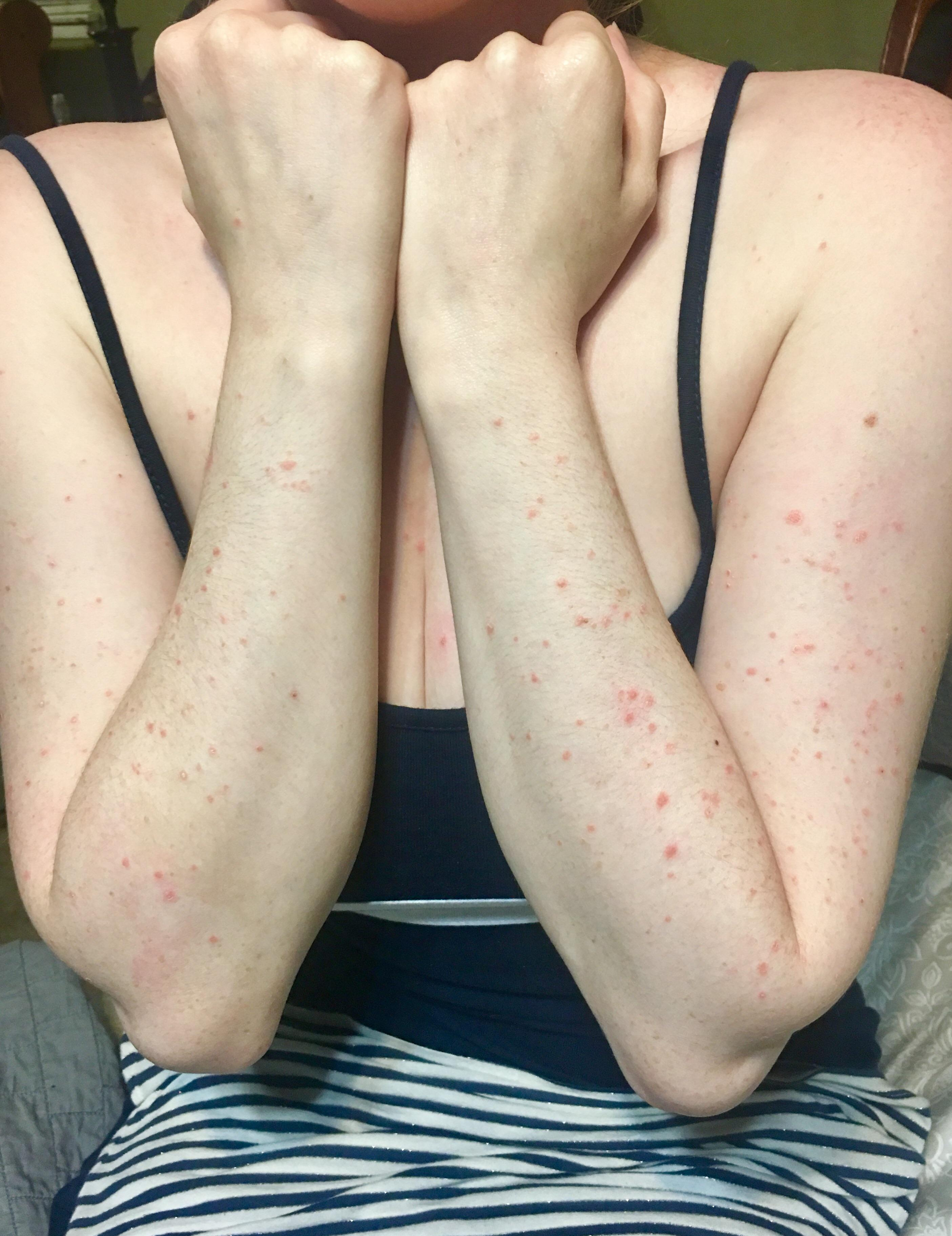 Please help identify this rash that appears when ill with cold or ...