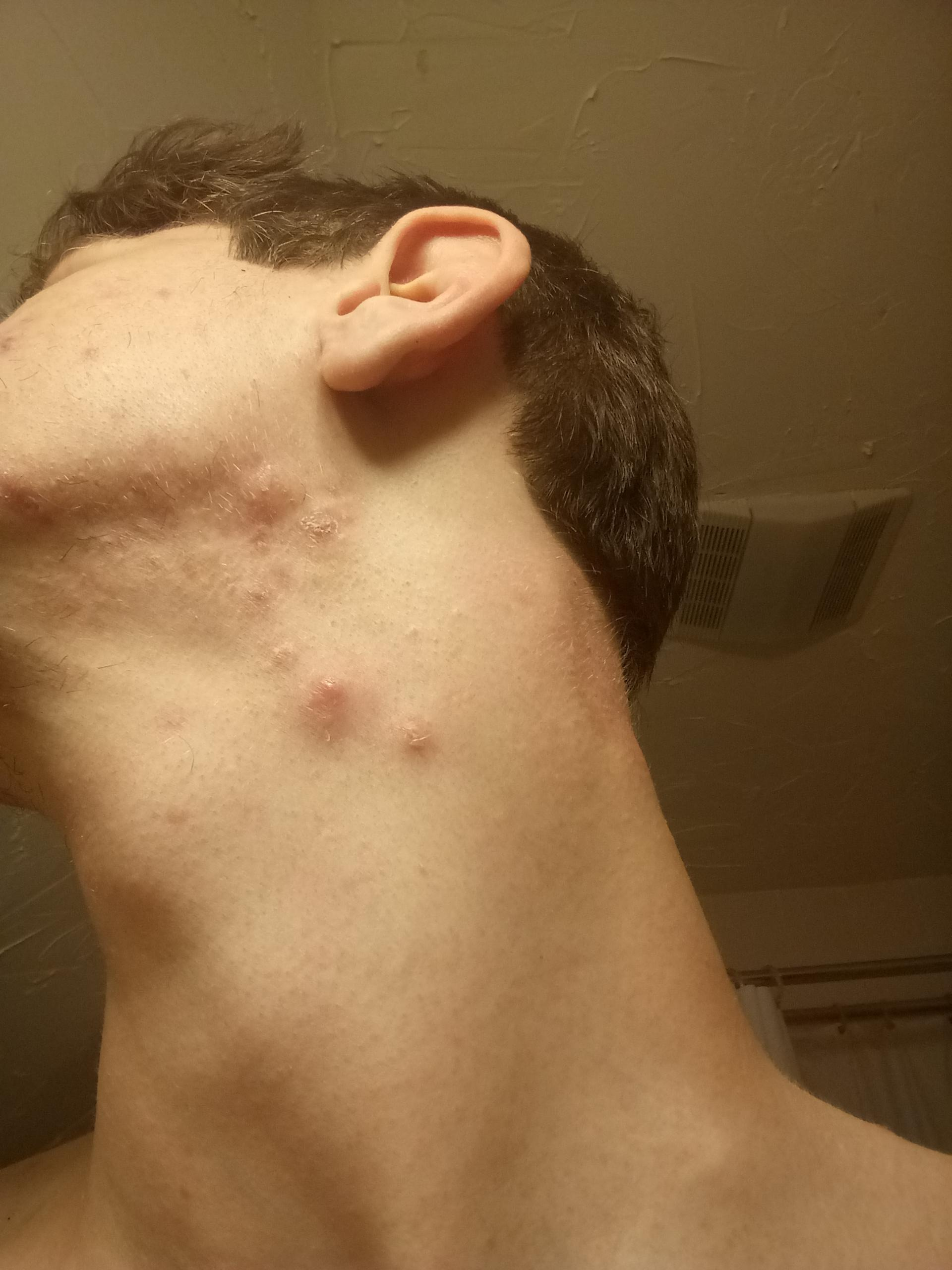 [Acne] 18 year old male and I get cystic acne in the same ...