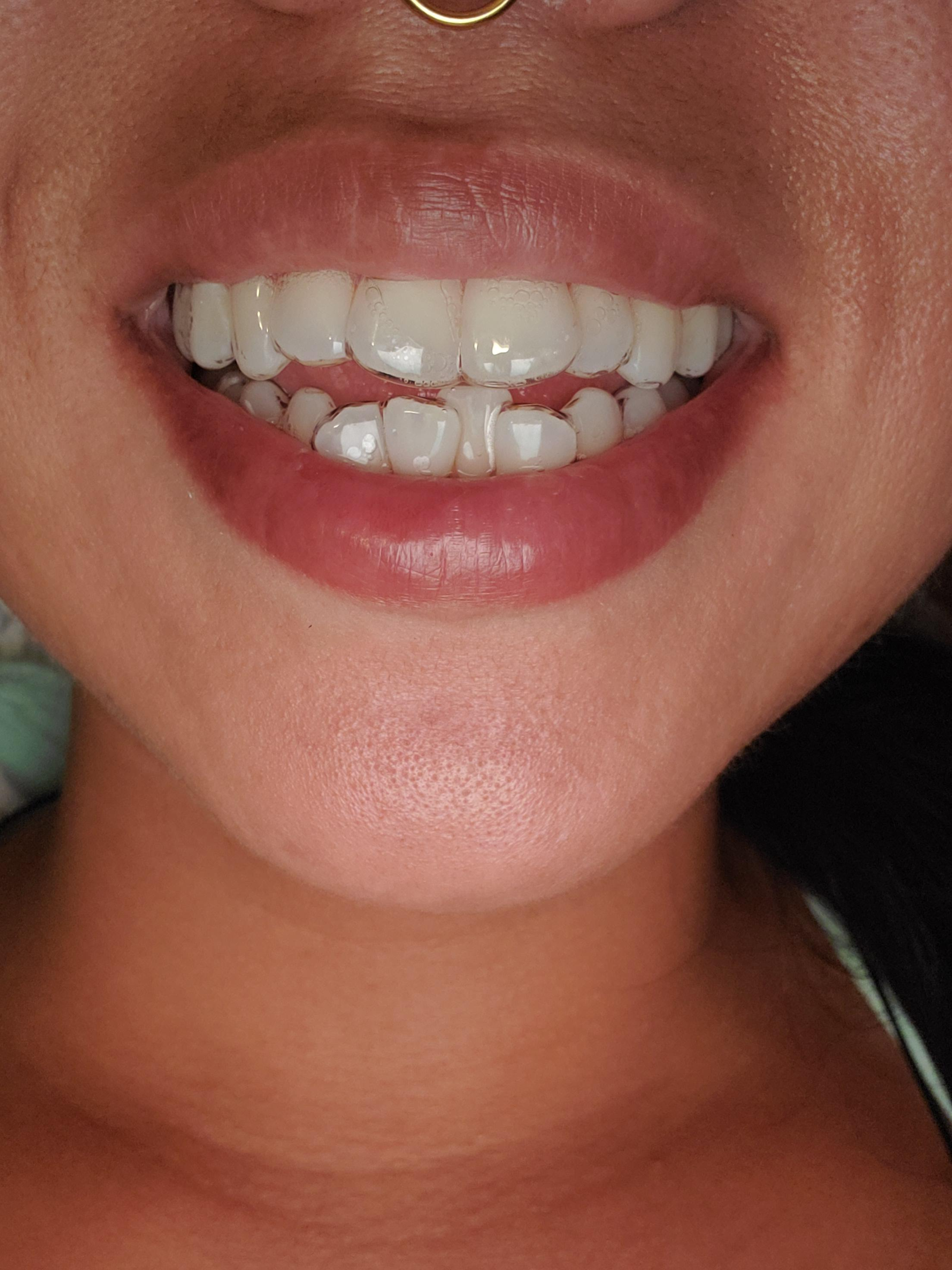 Why Do My Teeth Hurt When I Wear My Retainer : teeth, retainer, Wearing, Aligners., Aligners, Easily, Snapped, Place., There, Barely, Although, Edges, Liners, Mouth,
