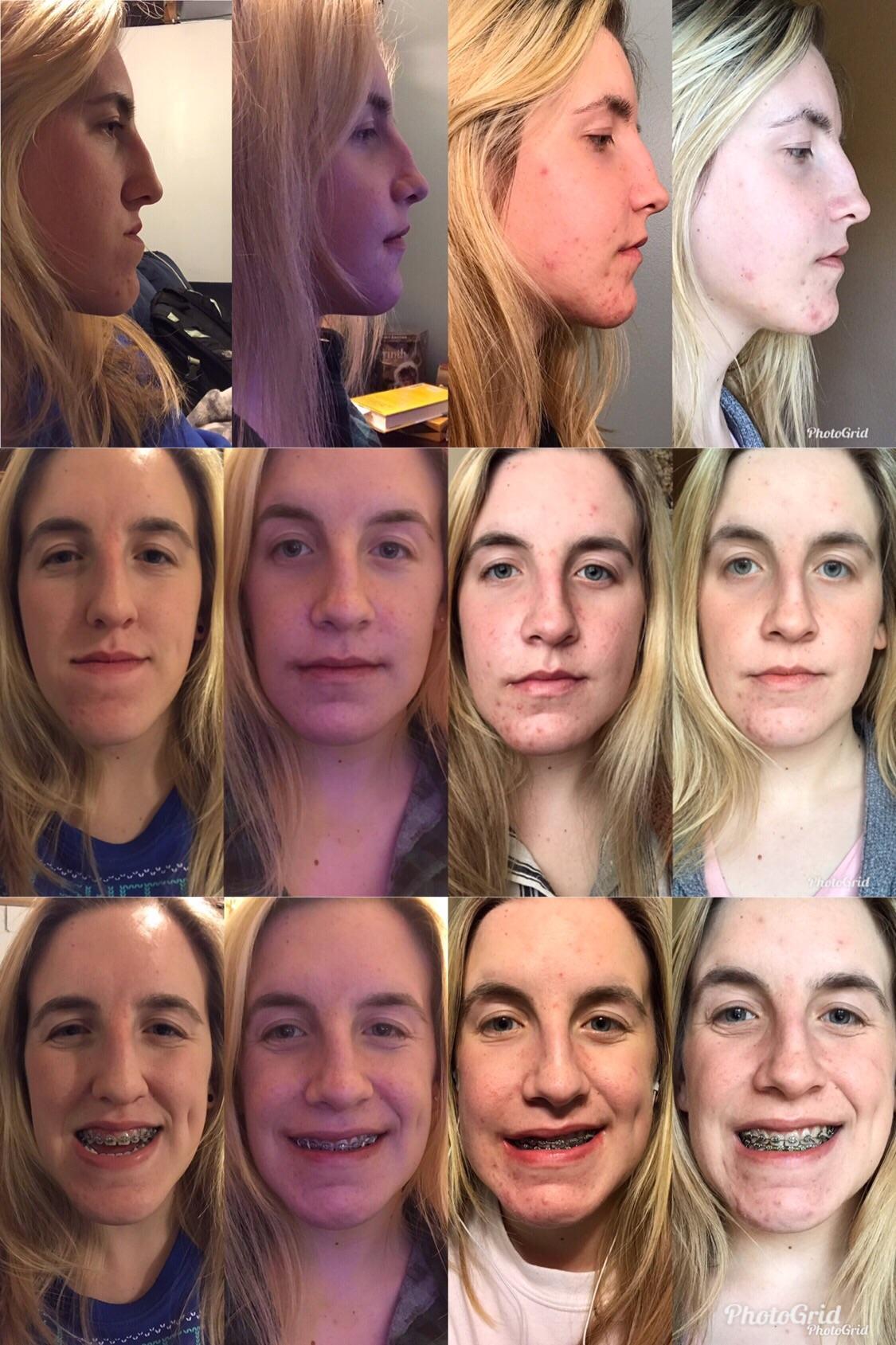 Double Jaw Surgery Genio Before 2 Weeks 4 Weeks 6 Weeks
