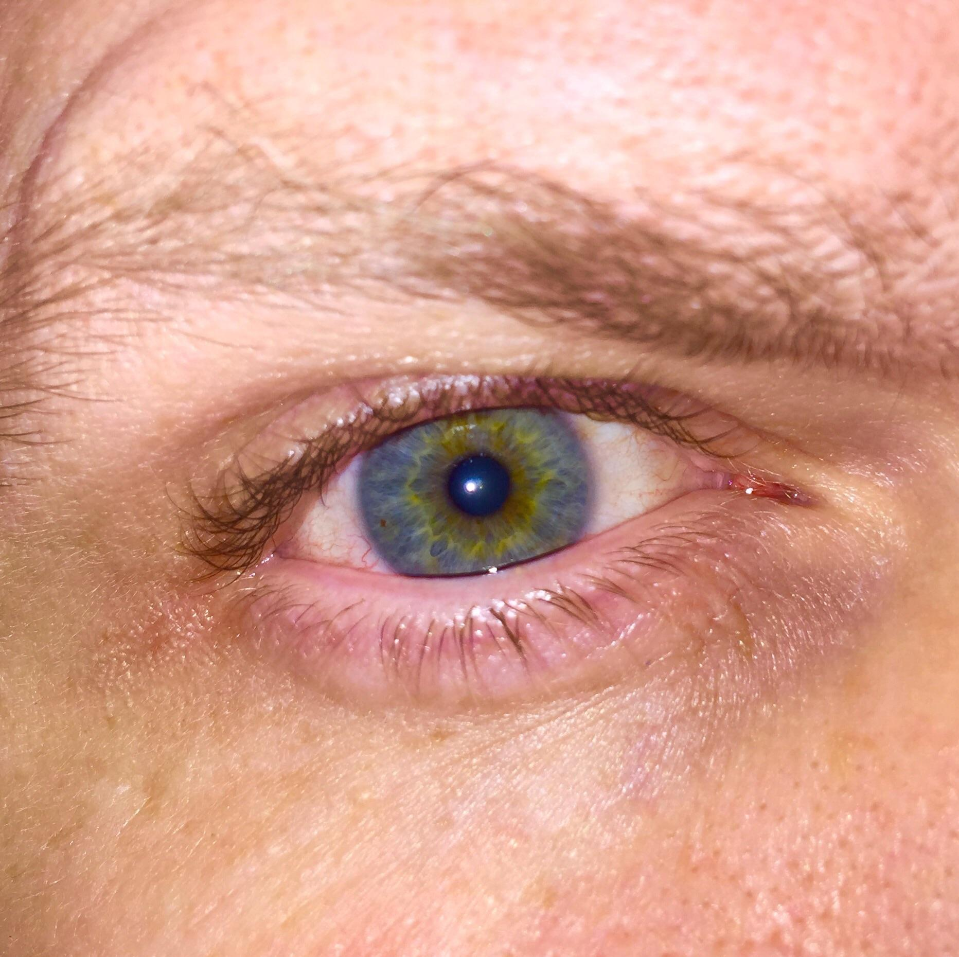 My Wife Tells Me I Have An Interesting Eye Color