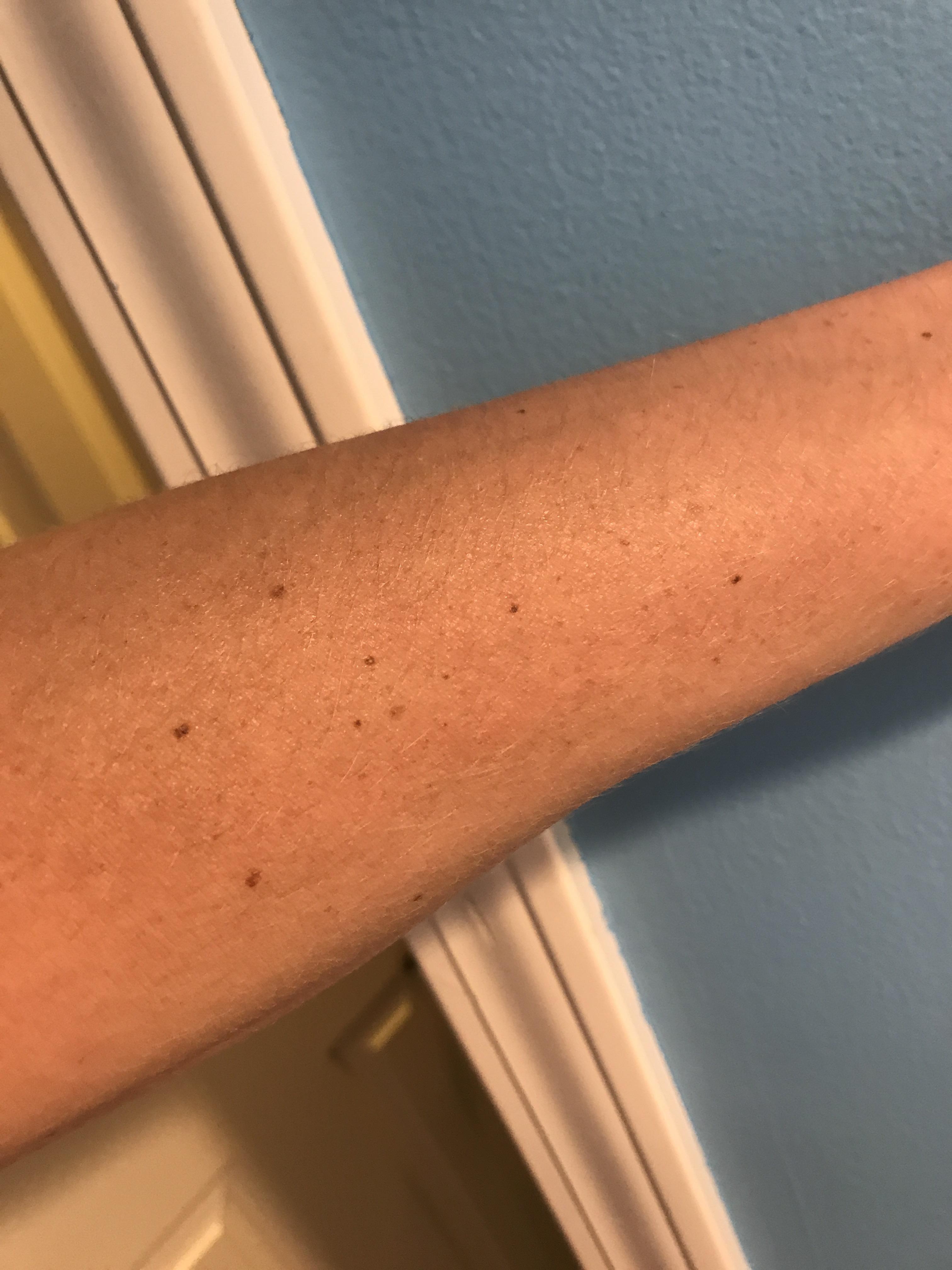 The Big Dipper in freckles on my arm : mildlyinteresting
